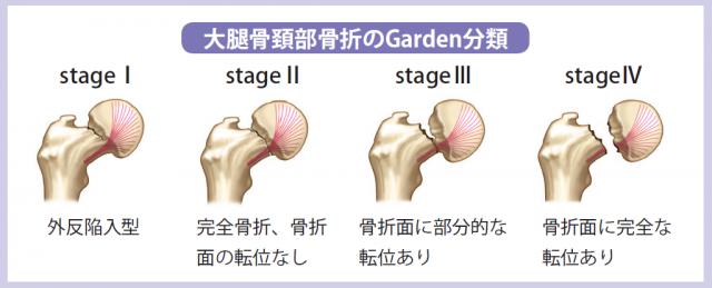 大腿骨頚部骨折