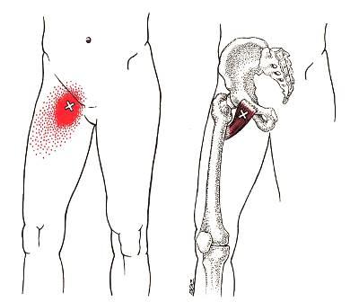 恥骨骨炎(グロインペイン症候群)