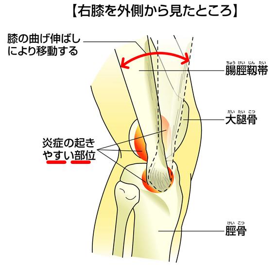 腸脛靭帯炎・ランナー膝(ランナーズニー)とは