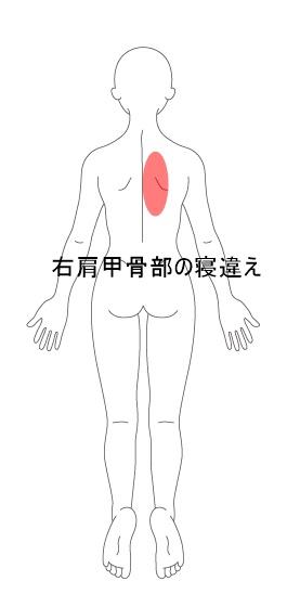【施術改善例】右肩甲骨部の寝違えが2回で改善した例 | 東大阪 ...